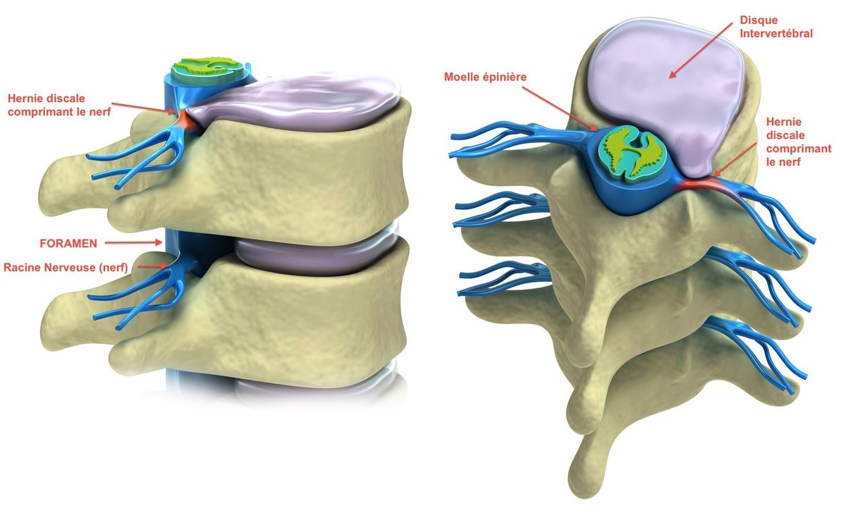 Symptôme hernie discale : Faire face à une hernie discale dans la vie quotidienne, les conseils et astuces